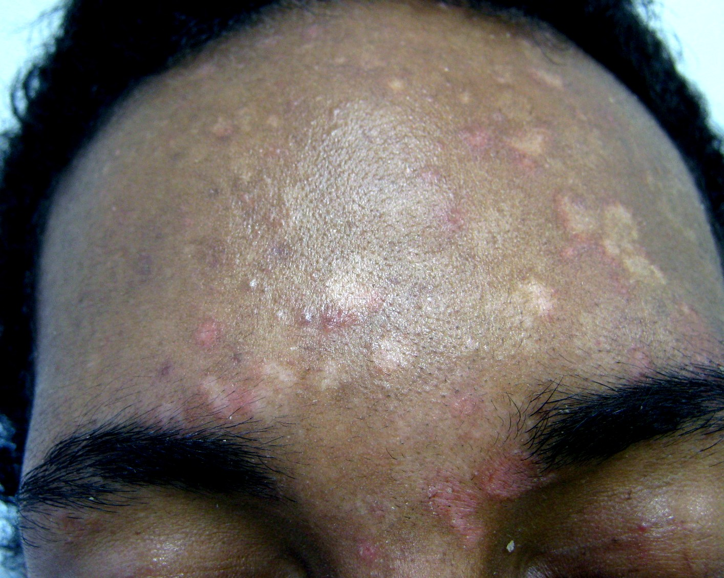 Pityriasis versicolor frontal retouche